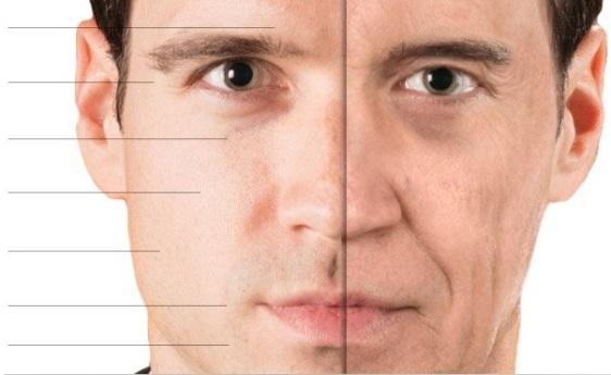 estetica viso ringiovanimento invecchiamento logopedia rughe parma militello