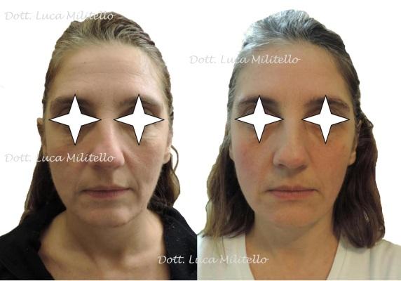 estetica viso ringiovanimento invecchiamento logopedia rughe parma militelloestetica invecchiamento viso antiage rughe